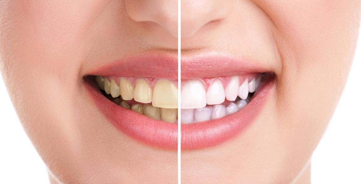 .dental and .dentist domain extensions